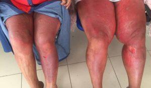Opiniones y reviews de piernas rojas para comprar online – Los 30 mejores