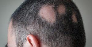 Ya puedes comprar en Internet los caida de pelo coronilla