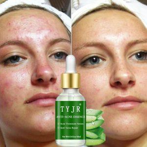 Maquillaje Facial espinillas Aspirad disponibles para comprar online
