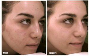 crema facial concha nácar regeneradora que puedes comprar On-line – El Top 20