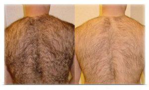 Ya puedes comprar on-line los depilacion definitiva espalda mujer – El Top 30