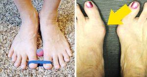 Catálogo para comprar online crema emla para dolor de pies – Los más solicitados