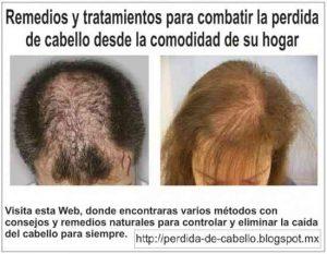 Lista de tratamiento para la caida de pelo para comprar on-line