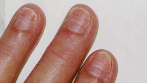 Catálogo de surcos en las uñas de las manos para comprar online – Los mejores
