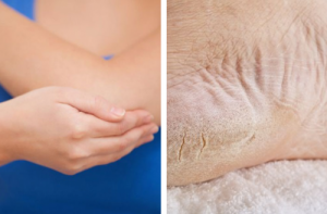 mejor crema reparadora de pies que puedes comprar – Los Treinta favoritos