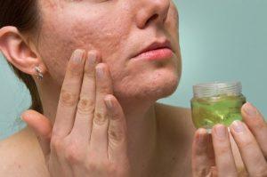 La mejor recopilación de gel de aloe vera en la piel para comprar en Internet – Los 30 preferidos