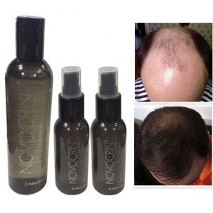 Ya puedes comprar Online los caida de pelo tratamiento