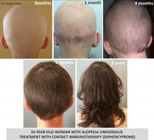 El mejor listado de caida de pelo por infeccion para comprar on-line – Los 30 más solicitado
