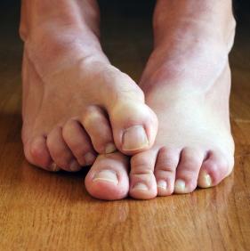 Selección de puntitos rojos en las piernas circulacion para comprar – Los 30 favoritos