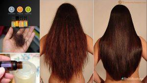 Reviews de caida de pelo en mujeres tiroides para comprar