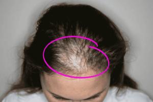 La mejor selección de caida de pelo mujer para comprar por Internet – Los preferidos