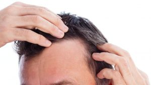 La mejor recopilación de caida de pelo en la mujer para comprar online