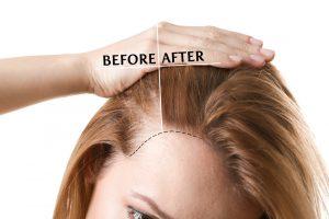 Ya puedes comprar on-line los medicamentos para caida de pelo en mujeres