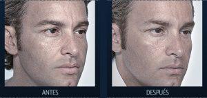 El mejor listado de crema facial para hombres tratamiento para comprar en Internet