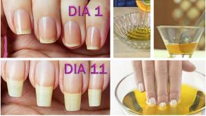 q hacer para q las uñas crezcan rapido que puedes comprar On-line – El Top Treinta