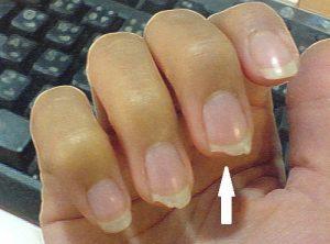 las uñas se me rompen a capas que puedes comprar Online – El Top 30