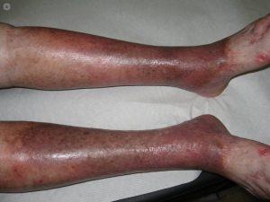 Opiniones de manchas en piernas por mala circulacion para comprar – Los Treinta favoritos