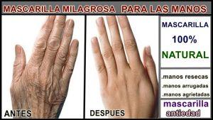 remedios naturales para el cuidado de las manos que puedes comprar online