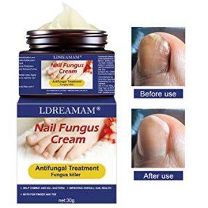 Ya puedes comprar los crema de pies hongos – Los más vendidos