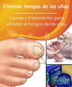 Lista de remedio casero para los hongos delas uñas para comprar on-line – El Top Treinta