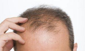 Recopilación de epoca de la caida del pelo para comprar On-line
