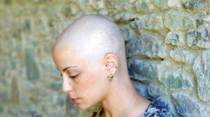 Catálogo de caida de pelo quimioterapia para comprar online