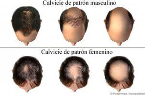 Selección de medicamento para caida de pelo para comprar On-line