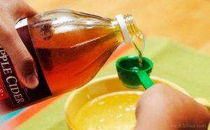 Lista de vinagre de manzana para la caida del pelo para comprar – Los 20 más vendidos