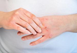 Catálogo para comprar crema casera para quitar manchas de las manos – El Top Treinta