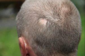 El mejor listado de problemas de caida de pelo para comprar Online