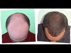 Opiniones y reviews de causas de caida del pelo para comprar por Internet – Los Treinta preferidos