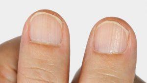 Recopilación de uñas quebradizas manos para comprar por Internet – Los mejores