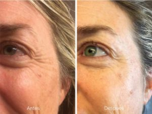 Recopilación de crema hidratante retinol antiarrugas facial para comprar
