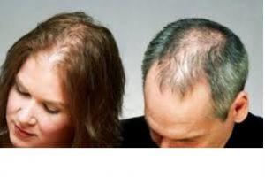 La mejor recopilación de causa de la caida del pelo para comprar online