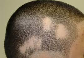 causas de la caida del pelo que puedes comprar por Internet – Los más vendidos