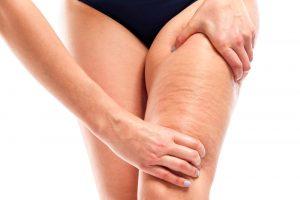Catálogo para comprar on-line masajes anticeluliticos piernas