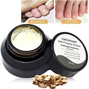 El mejor listado de la mejor crema para hongos en las uñas de los pies para comprar – Los más solicitados