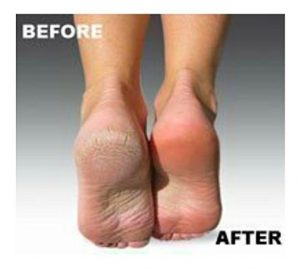 Recopilación de pies secos para comprar online – Los más solicitados