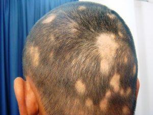 Catálogo para comprar por Internet causas de caida de pelo – Los favoritos