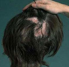 La mejor selección de caida de pelo por anemia para comprar Online – El TOP 20