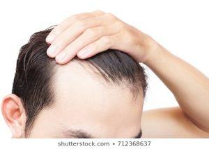 caida de pelo hombre que puedes comprar Online – Los más vendidos