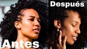 La mejor selección de caida de pelo postparto para comprar en Internet – Los preferidos
