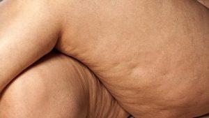 Opiniones de efectividad masajes anticeluliticos para comprar on-line – Los 30 más solicitado