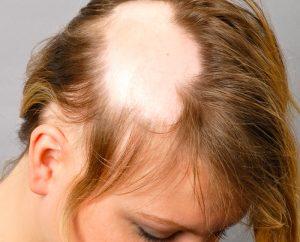 Lista de causas de caida de pelo en las mujeres para comprar On-line