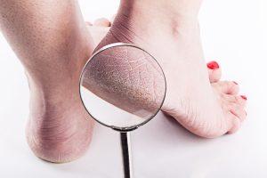 Recopilación de grietas dolorosas en los talones para comprar On-line