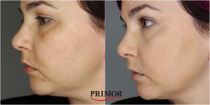 Catálogo para comprar Online base de maquillaje touche eclat le t – Los preferidos por los clientes