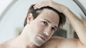 Opiniones y reviews de caida de pelo en hombres jovenes para comprar por Internet