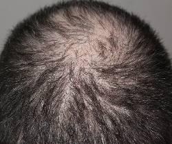 La mejor lista de caida de pelo remedios para comprar on-line – Los 20 más vendidos