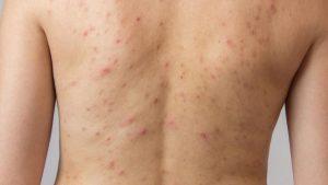 Recopilación de depilacion cuello mujer para comprar Online – Los mejores