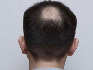 Catálogo para comprar On-line prevenir caida de pelo hombres – Los mejores